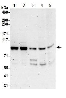 Western blot - Anti-Striatin 4 antibody (ab194948)