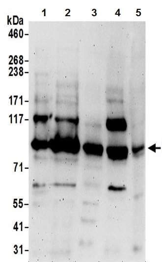 Western blot - Anti-ORP-11 antibody - N-terminal (ab194957)