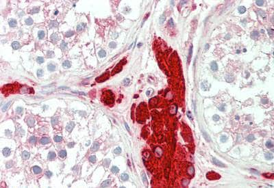 Immunohistochemistry (Formalin/PFA-fixed paraffin-embedded sections) - Anti-PGRMC1 antibody - C-terminal (ab194963)