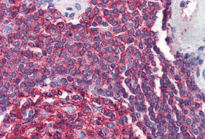 Immunohistochemistry (Formalin/PFA-fixed paraffin-embedded sections) - Anti-CD20 antibody - C-terminal (ab194970)