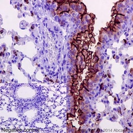 Immunohistochemistry (Formalin/PFA-fixed paraffin-embedded sections) - Anti-MUC1 antibody [EPR1023] - Low endotoxin, Azide free (ab194978)
