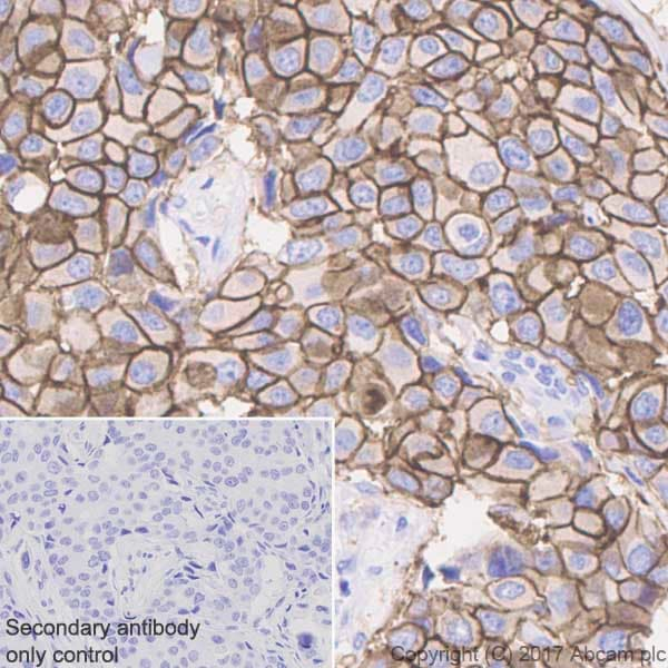 Immunohistochemistry (Formalin/PFA-fixed paraffin-embedded sections) - Anti-ErbB 2 antibody [EP1045Y] - BSA and Azide free (ab194979)