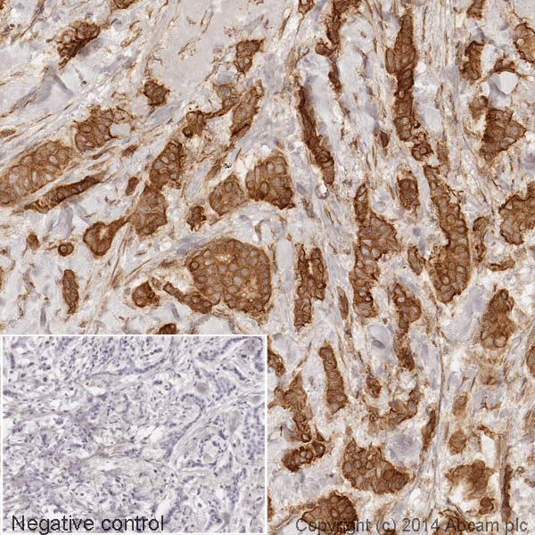 Immunohistochemistry (Formalin/PFA-fixed paraffin-embedded sections) - Anti-Nrf2 antibody [EP1808Y] (HRP) (ab194986)
