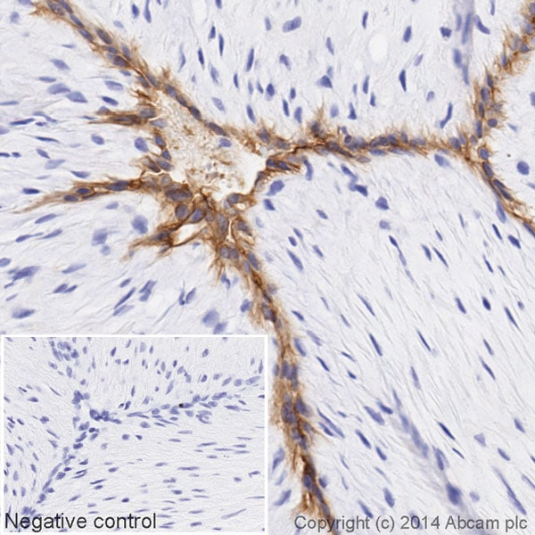 Immunohistochemistry (Formalin/PFA-fixed paraffin-embedded sections) - HRP Anti-CD34 antibody [EP373Y] (ab195017)