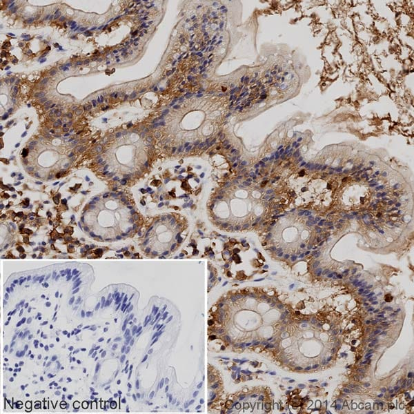 Immunohistochemistry (Formalin/PFA-fixed paraffin-embedded sections) - Anti-Glucose Transporter GLUT1 antibody [EPR3915] (HRP) (ab195021)
