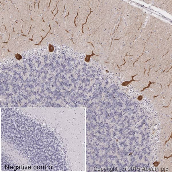 Immunohistochemistry (Formalin/PFA-fixed paraffin-embedded sections) - Anti-LRRK2 antibody [MJFF2 (c41-2)] (HRP) (ab195024)