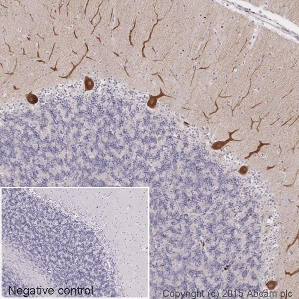 Immunohistochemistry (Formalin/PFA-fixed paraffin-embedded sections) - HRP Anti-LRRK2 antibody [MJFF2 (c41-2)] (ab195024)