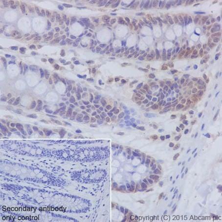 Immunohistochemistry (Formalin/PFA-fixed paraffin-embedded sections) - Anti-PKC beta 1 antibody [EPR18512] (ab195039)