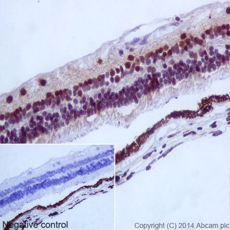 Immunohistochemistry (Formalin/PFA-fixed paraffin-embedded sections) - Anti-PAX6 antibody [EPR15858] (ab195045)