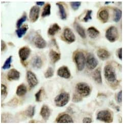 Immunohistochemistry (Formalin/PFA-fixed paraffin-embedded sections) - Anti-HDAC8 (phospho S39) antibody (ab195057)