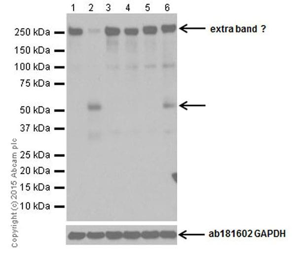 Western blot - Anti-RIP3 (phospho S232) antibody [EPR9516(N)-25] (ab195117)