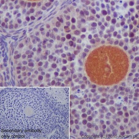 Immunohistochemistry (Formalin/PFA-fixed paraffin-embedded sections) - Anti-DCAF13 antibody [EPR18723] (ab195121)
