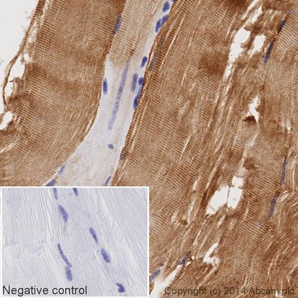 Immunohistochemistry (Formalin/PFA-fixed paraffin-embedded sections) - HRP Anti-Desmin antibody [Y66] - Cytoskeleton Marker (ab195178)
