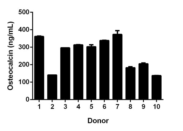 Quantitation of Osteocalcin expression in individual serum donors.
