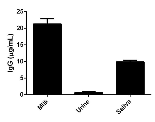 Comparison of IgG levels in Human milk, urine and saliva.