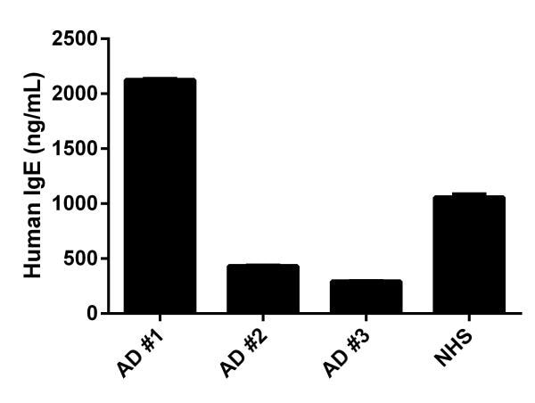 Human IgE levels in individual Atopic Dermatitis (AD) donors and normal Human serum (NHS).