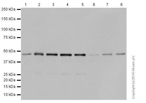 Western blot - Anti-Carbonic Anhydrase 12/CA12 antibody [EPR14861] - C-terminal (ab195233)