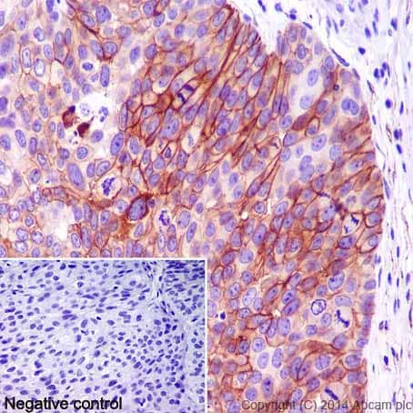 Immunohistochemistry (Formalin/PFA-fixed paraffin-embedded sections) - Anti-Carbonic Anhydrase 12/CA12 antibody [EPR14861] - C-terminal (ab195233)