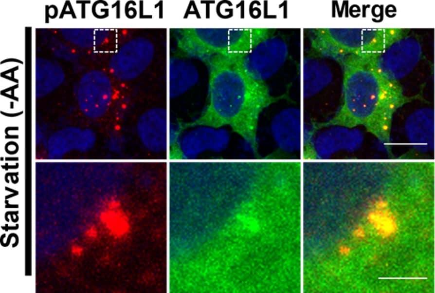 Immunocytochemistry/ Immunofluorescence - Anti-ATG16L1 (phospho S278) antibody [EPR19016] (ab195242)