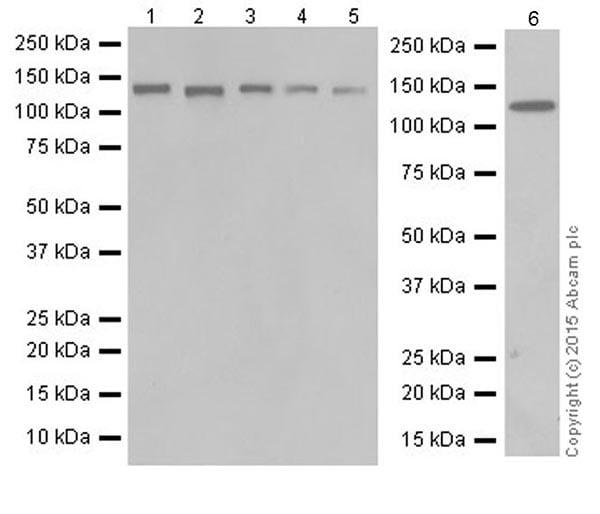 Western blot - Anti-PKN1 antibody [EPR18808] (ab195264)