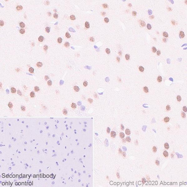 Immunohistochemistry paraffin embedded sections - Anti-USP22 antibody [EPR18945] (ab195289)