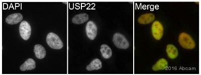 Immunocytochemistry/ Immunofluorescence - Anti-USP22 antibody [EPR18945] (ab195289)