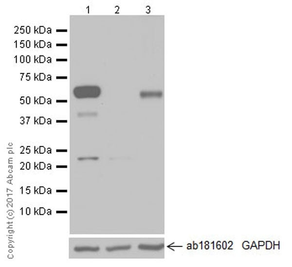Western blot - Anti-USP22 antibody [EPR18945] (ab195289)