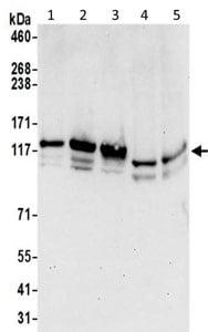 Western blot - Anti-IWS1 antibody - N-terminal (ab195309)