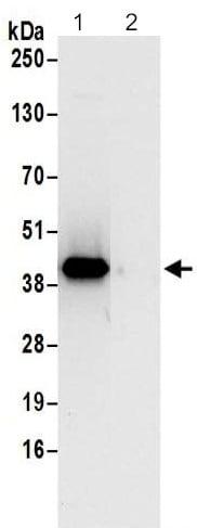 Immunoprecipitation - Anti-XAB1/GPN1 antibody - C-terminal (ab195332)