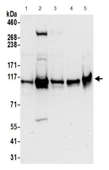 Western blot - Anti-HNRNPUL2 antibody (ab195338)