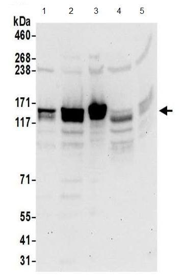 Western blot - Anti-SR140 antibody (ab195340)