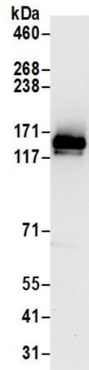 Immunoprecipitation - Anti-SR140 antibody (ab195340)