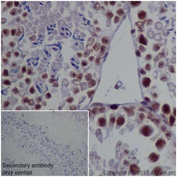 Immunohistochemistry (Formalin/PFA-fixed paraffin-embedded sections) - Anti-METTL3 antibody [EPR18810] (ab195352)
