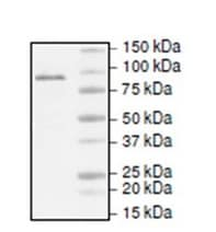 SDS-PAGE - Recombinant human TET1 protein (ab195354)