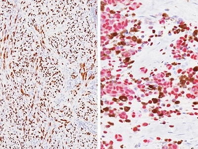 Immunohistochemistry (Formalin/PFA-fixed paraffin-embedded sections) - Anti-SOX10 antibody [BC34] (ab195364)