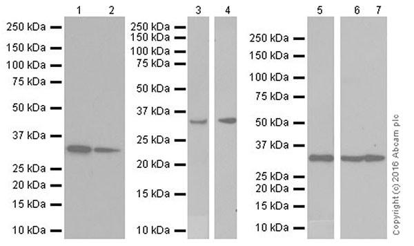 Western blot - Anti-PP-X antibody [EPR19502] (ab195371)