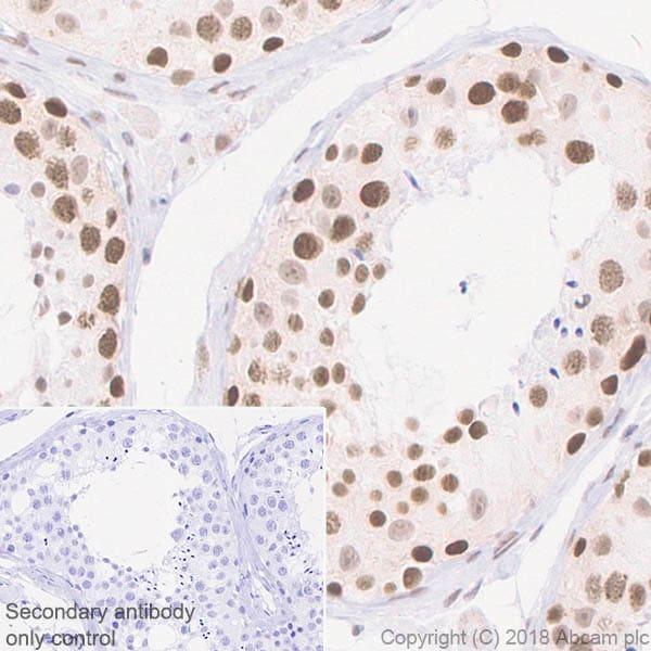 Immunohistochemistry (Formalin/PFA-fixed paraffin-embedded sections) - Anti-ALKBH5 antibody [EPR18958] (ab195377)