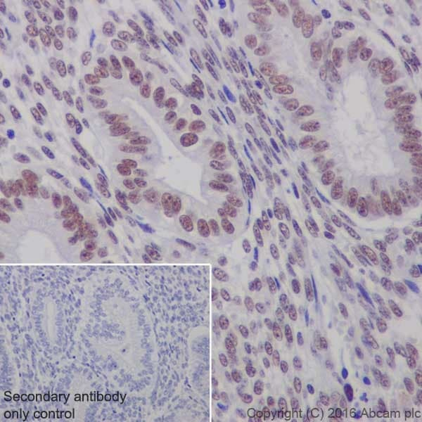 Immunohistochemistry (Formalin/PFA-fixed paraffin-embedded sections) - Anti-WTAP antibody [EPR18744] (ab195380)
