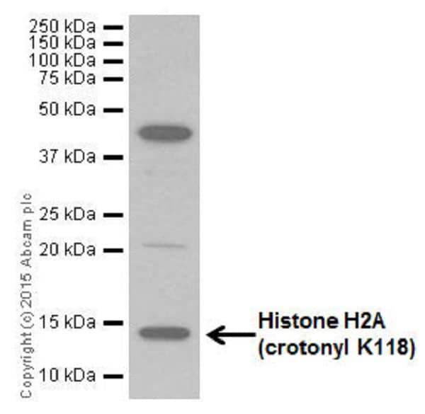 Western blot - Anti-Histone H2A (crotonyl K118) antibody [EP18768] (ab195466)