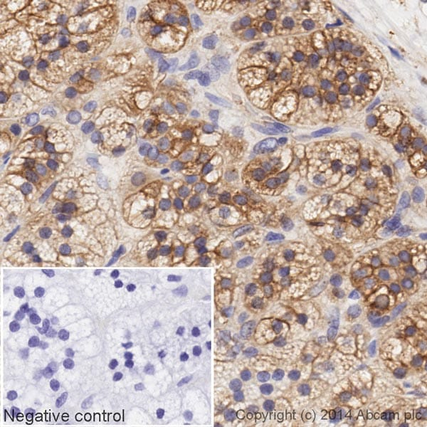 Immunohistochemistry (Formalin/PFA-fixed paraffin-embedded sections) - Anti-LDL Receptor antibody [EP1553Y] (HRP) (ab195516)
