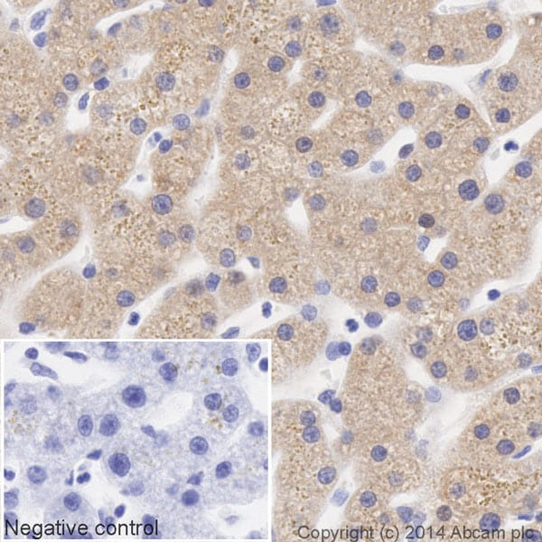 Immunohistochemistry (Formalin/PFA-fixed paraffin-embedded sections) - HRP Anti-ALDH1A1 antibody [EP1933Y] (ab195517)