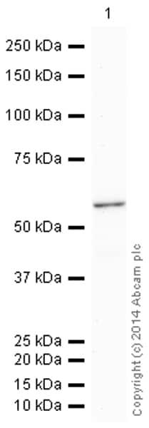 Western blot - HRP Anti-ALDH1A1 antibody [EP1933Y] (ab195517)