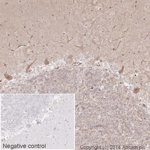 Immunohistochemistry (Formalin/PFA-fixed paraffin-embedded sections) - Anti-CaMKII antibody [EP1829Y] (HRP) (ab195518)