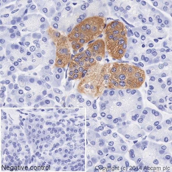 Immunohistochemistry (Formalin/PFA-fixed paraffin-embedded sections) - Anti-Synaptophysin antibody [YE269] (HRP) (ab195520)