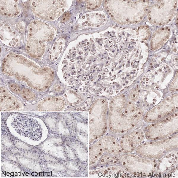 Immunohistochemistry (Formalin/PFA-fixed paraffin-embedded sections) - HRP Anti-NADPH oxidase 4 antibody [UOTR1B492] (ab195524)