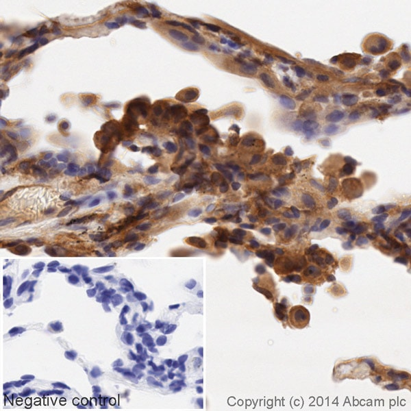Immunohistochemistry (Formalin/PFA-fixed paraffin-embedded sections) - Anti-CD14 antibody [EPR3653] (HRP) (ab195525)