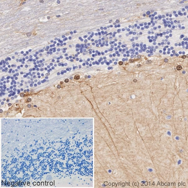 Immunohistochemistry (Formalin/PFA-fixed paraffin-embedded sections) - Anti-S100 beta antibody [EP1576Y] (HRP) (ab195535)