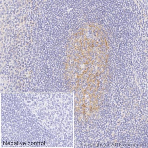Immunohistochemistry (Formalin/PFA-fixed paraffin-embedded sections) - Anti-VCAM1 antibody [EPR5047] (HRP) (ab195540)