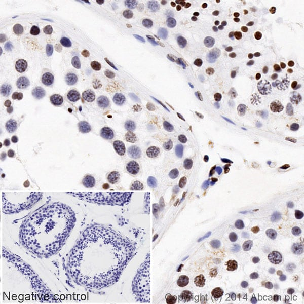 Immunohistochemistry (Formalin/PFA-fixed paraffin-embedded sections) - HRP Anti-Rad51 antibody [EPR4030(3)] (ab195548)