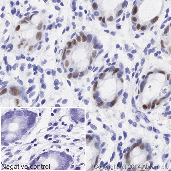 Immunohistochemistry (Formalin/PFA-fixed paraffin-embedded sections) - Anti-SOX9 antibody [EPR14335] (HRP) (ab195550)